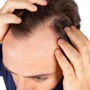 Dealing with Hair Loss at Young Age
