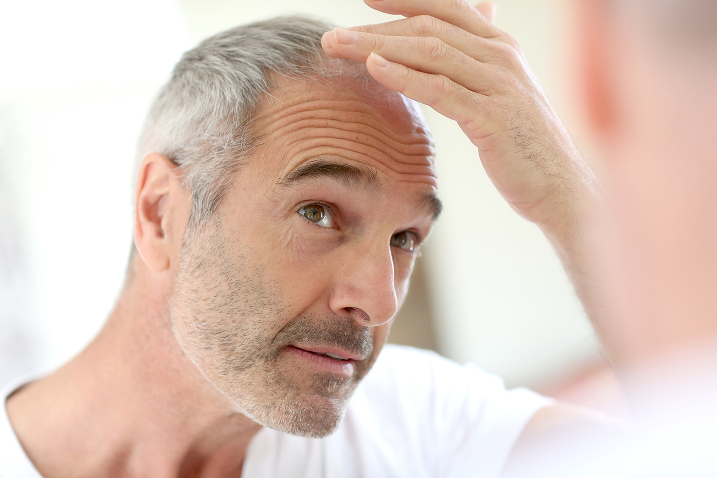 Trauma and Hair Loss