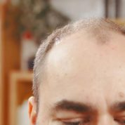 Can You Reverse Baldness Without Emptying Your Bank Account?